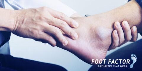 Foot Factor - Matthew Collison